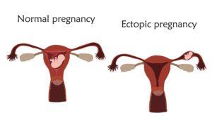Intrauterina o extrauterina?